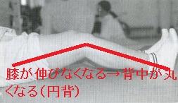 高齢者の膝関節疾患2