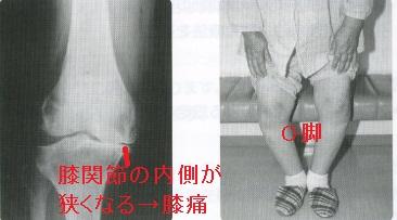 高齢者の膝関節疾患